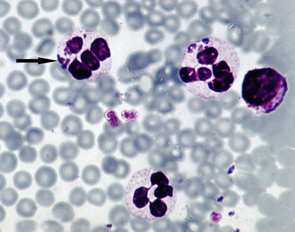 id-6-Anaplasma-phagocytophilum-sheep 978px.jpg